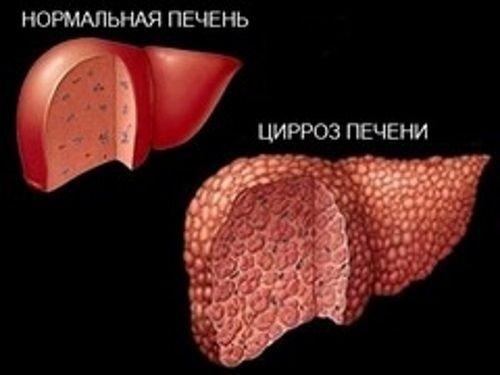 Болит ли печень при циррозе