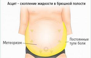 Цирроз вены на животе
