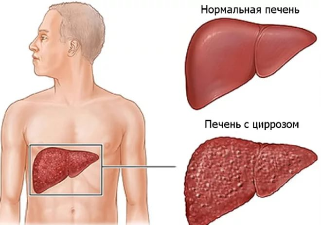 Температура при циррозе печени