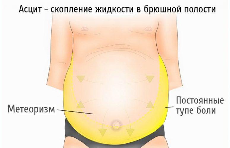 Асцит при циррозе печени: сколько живут