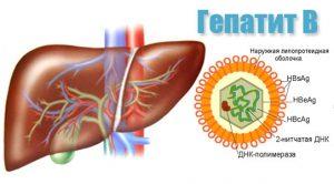 Гепатит б народная медицина