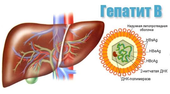 Гепатит Б, лечение народными средствами