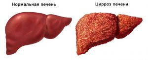 Показатели аст и алт при алкогольном гепатите