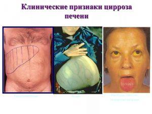 Компенсированный цирроз печени прогноз жизни