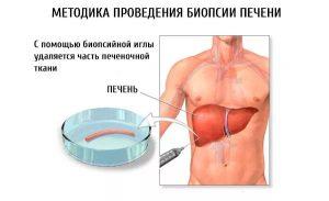 Точный анализ на гепатит в