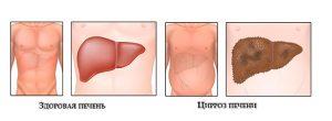 Срок жизни при последней стадии цирроза печени