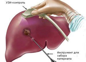Носителем вируса гепатита с