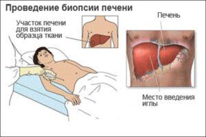 Норма при сдачи анализа на гепатит с