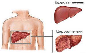 Гепатит опасность для человека