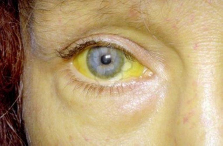 Можно ли быть донором, если болел желтухой