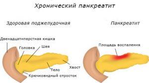 Классификация панкреатита современная