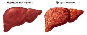 Как лечить токсический гепатит
