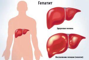 Гепатит с как уничтожить