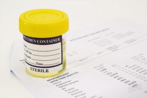 Какие бывают тесты на наркотики